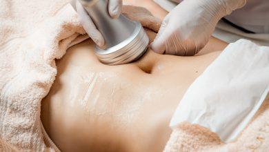 SculpSure procedure