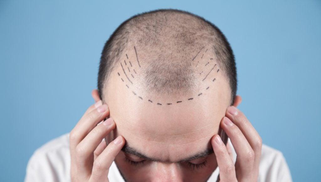 Hair transplant preparation