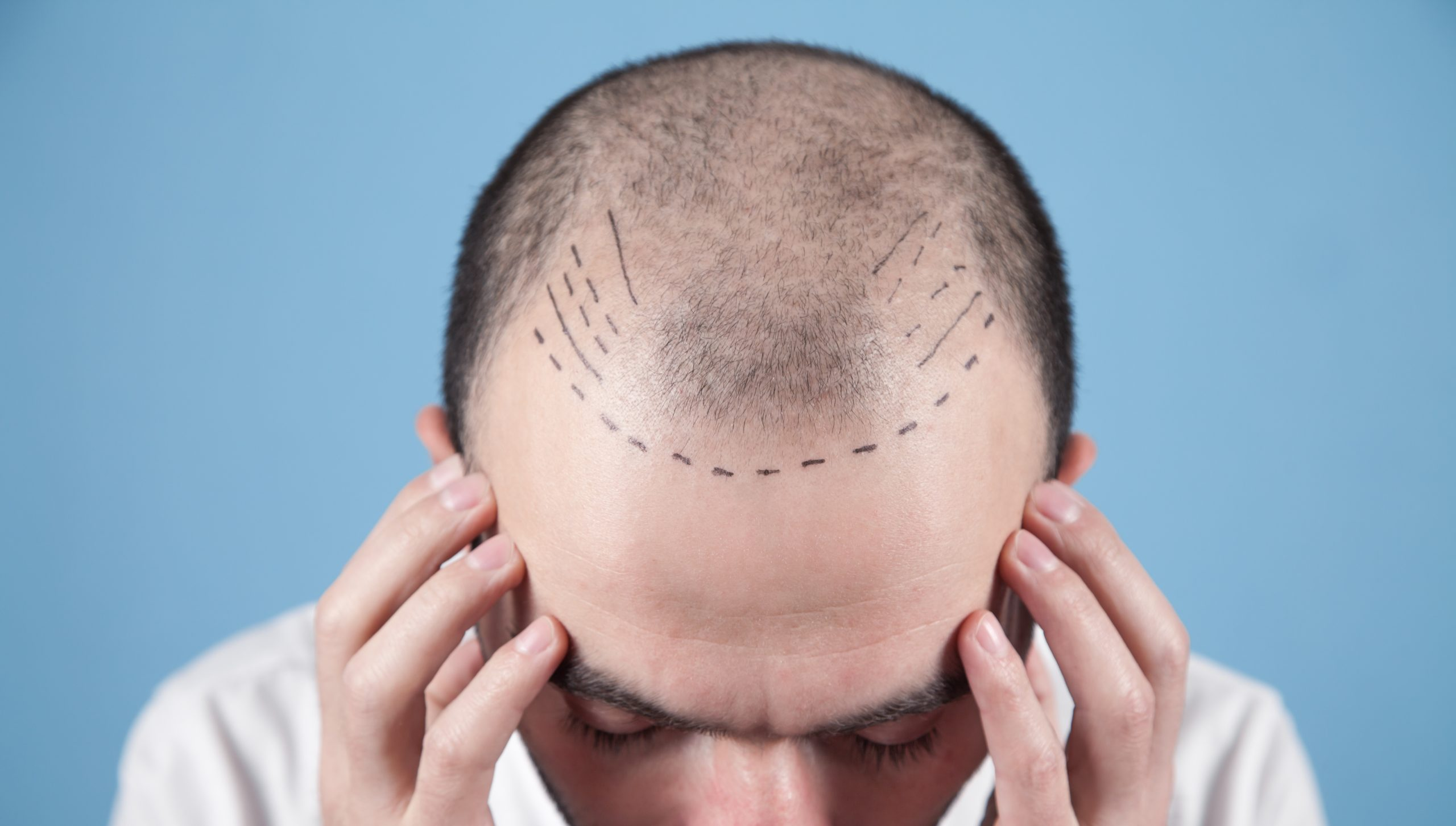 Hair Transplant: The New Male 'Must-Have' Procedure